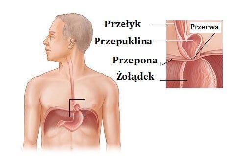 Przepuklina rozworu przełykowego to schorzenie spowodowane przez przemieszczenie się części żołądka z jamy brzusznej do klatki piersiowej.