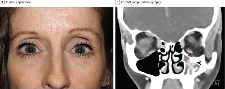 Maxillary Sinus Wall Thickening in Silent Sinus Syndrome  JAMA Ophthalmol. 2017;135(5):e170637. doi:10.1001/jamaophthalmol.2017.0637