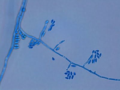 Fusarium oxysporum (showing hyphae from which monophialides extend, producing microconidia at the tips which can accumulate there unless dispersed.)