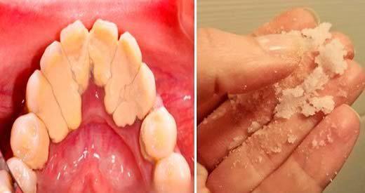 Come eliminare il tartaro dei denti con sale e semi di lino