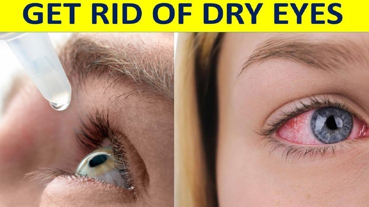 Here's Simple Ways How You Can Get Rid Of Dry Eyes That You Must Try!