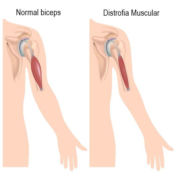 Distrofia Muscular de Duchenne - Causas, sintomas e tratamentos!