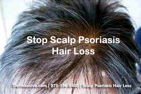 Can Scalp Psoriasis Cause Hair Loss? Can the hair loss can be caused by the psoriasis or by the products used to treat it? Know it all in our blog!