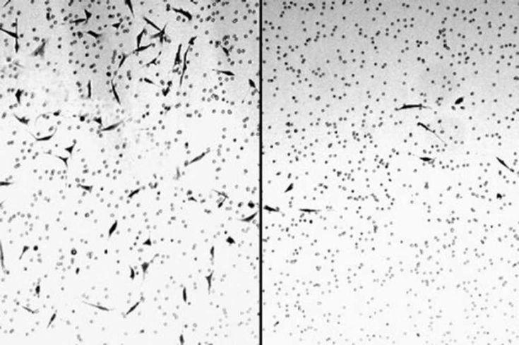 Sledujte jak konopí ničí rakovinné buňky pod mikroskopem