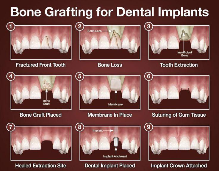 Bone grafts for dental implants