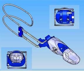 Картинки по запросу Prosthetic finger