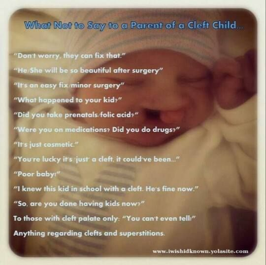 What not to say to the parent of a cleft child