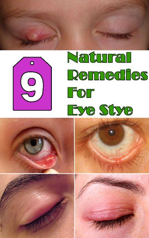 how to get rid of stye inside eyelid