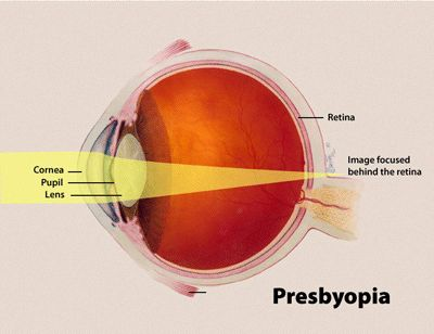 Presbyopia is one of the common eye disorders wherein the problem is found in the lens. The lens would normally function to give the eye a good focus, however, when presbyopia happens, the lens los…  (y) Nursing Crib (y) http://nursingcrib.com  (y) Nursing File (y) http://www.nursingfile.com #nurse #nursing #RN #nurses #ilovenursing #gifts #nurse practitioner #all nurses #nursing programs #travel nursing #accelerated nursing programs #cns #nursing jobs #nursing school