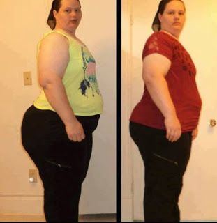 Met weight loss research nyc
