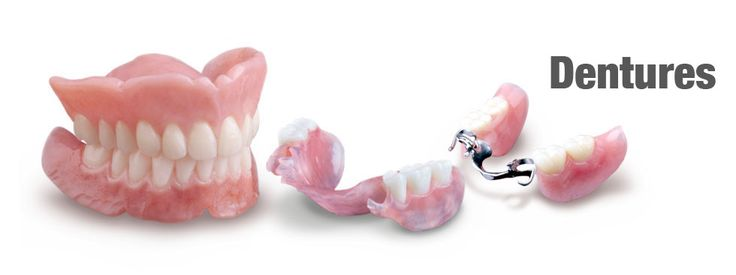 [Type of dentures] -------------------------- ✴🌳Affordable dentures are offered in a variety of denture styles that include full and partial dentures.🌺👵 #dentures #dentistry #dentalclinic #cvitaminclinic #szeged #hungary