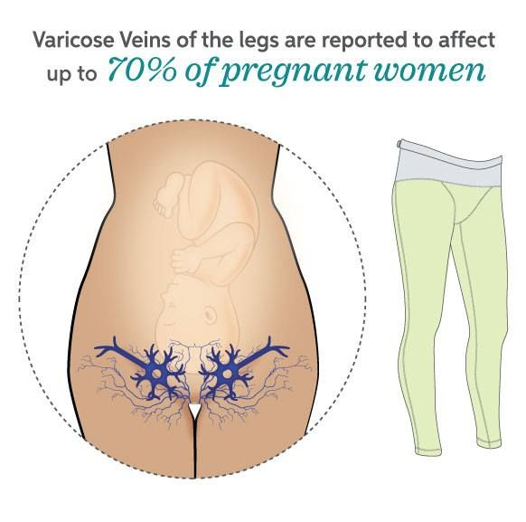 What are vaginal varicose veins is there a cure for them
