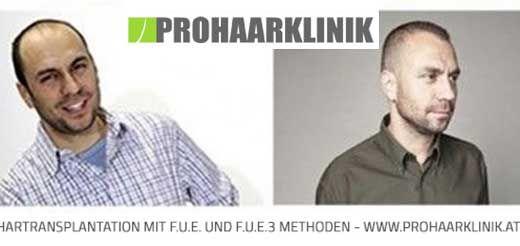 Haartransplantation München, Haarverpflanzung Bayern