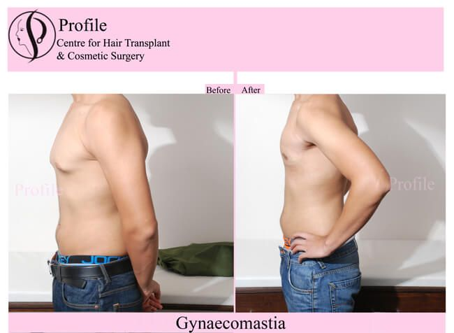 Get the best treatment of Male breast reduction at our centre. Check out more results on our website.