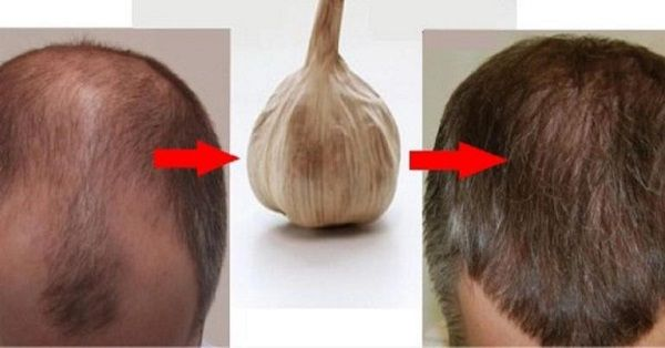 Hair loss is a difficult problem that can be caused by aging or other factors. Garlic and onion are natural wonders that can cure the baldness and hair loss easily and effectively. Garlic is probably the best natural treatment for hair loss besides many others such as rosemary infused oil, pumpkin seed oil and the ...
