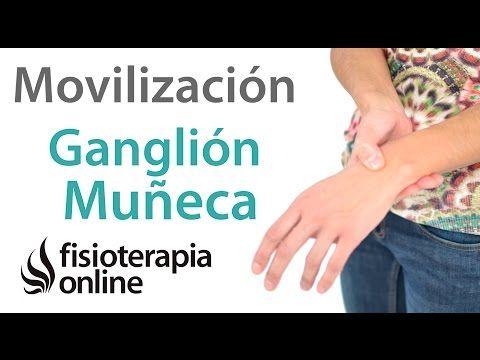 Ganglión de muñeca o muñeca abierta - Qué es, causas, síntomas y tratamiento - YouTube