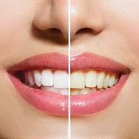 9 Foundation Foods That Whiten Your Teeth While Reversing Bone Loss