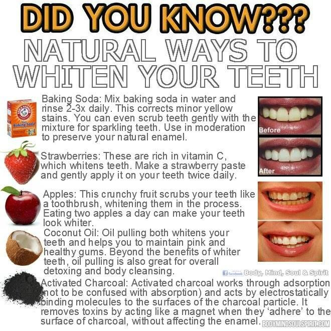 Natural Teeth Whitening Remedies Uk