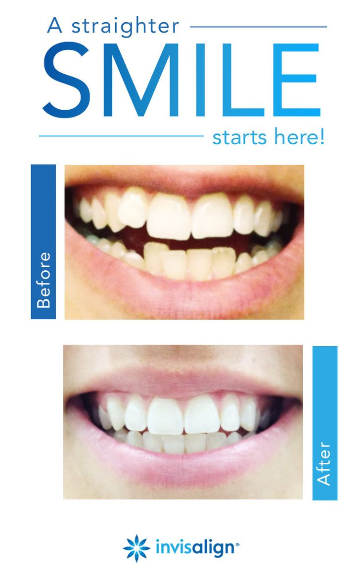 11 Best Invisalign Before And After Images On Pinterest
