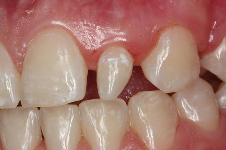 Do you have peg laterals? The upper tooth that seems disproportionately smaller than the others is called the lateral incisor. This condition is known as having a peg lateral. This condition is not harmful to the tooth and can add character to a smile   But if someone is self conscious about their smile due to this anomaly there are solutions! First you can get bonding done to the tooth. This means that filling material which matches the shade of your tooth can be added to make the tooth…
