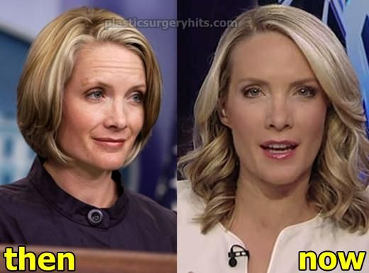 Dana Perino - how did she do that?! She looks better now!