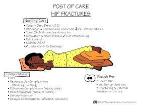 Post Op Care hip fractures -  Nursing School: Medical Surgical Nursing Mnemonics