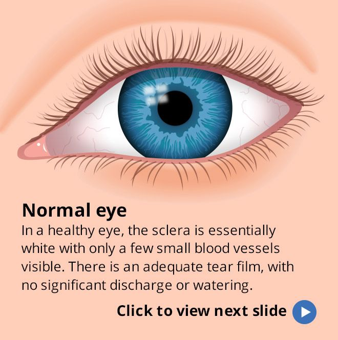 View a slideshow of pink eye (conjunctivitis) symptoms, remedies and prevention