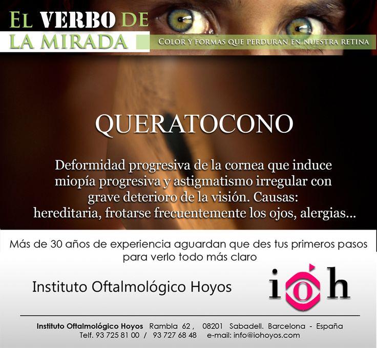 El queratocono es una deformidad progresiva de la córnea que adopta una forma cónica irregular debido a la alteración de la estructura interna del tejido corneal.  Seguir leyendo... http://iohoyos.com/gallery-item/queratocono/