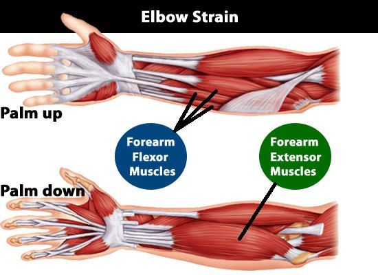 elbow muscle strain https://www.tenniselbowsecretsrevealed.com/elbow-strains-and-sprains-3-severity-grades-you-must-know-and-understand/