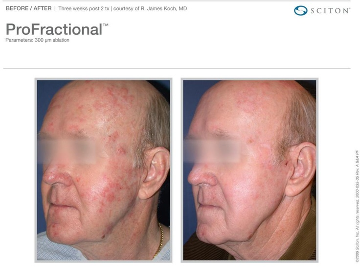 17 best sciton bbl and laser treatments images on for Tattoo removal milwaukee