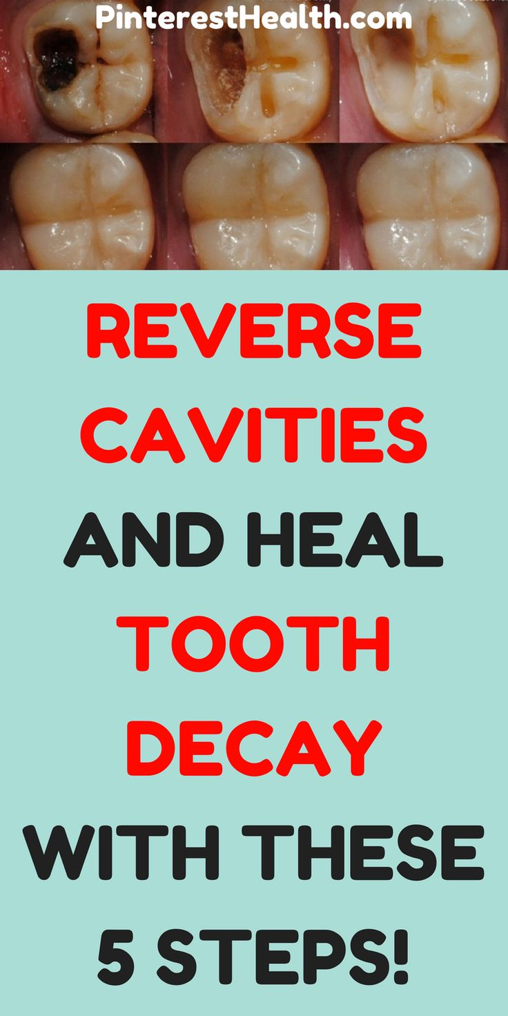 Tooth decay or cavities is a breakdown of teeth due to bacteria activity which damages the tooth enamel. This might damage the inner layer, dentin, and cause damage to the tooth structure.