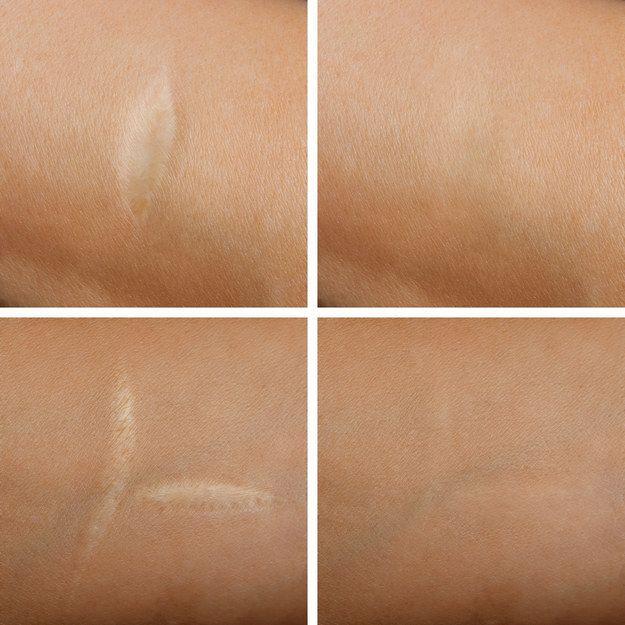 Ayuda a disminuir cicatrices y estrías. | Por estas razones el aceite de coco es el mejor amigo de toda mujer