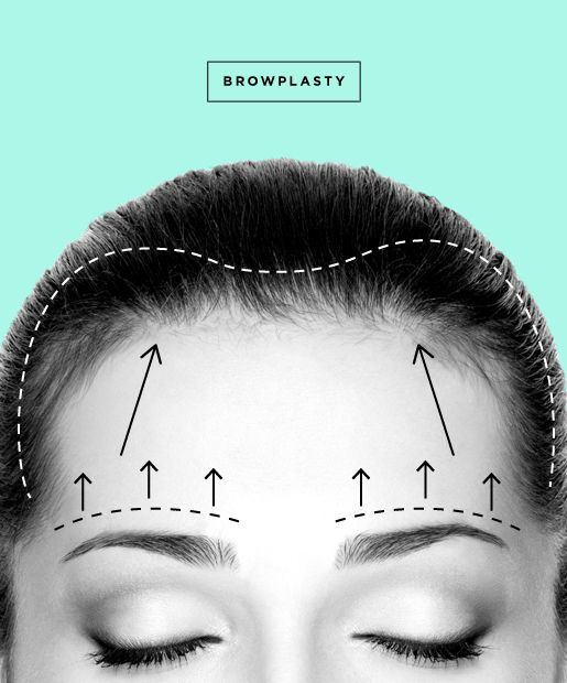 All you need to know about a Forehead Lift/Brow Lift aka Browplasty! Click on the photo for more information!