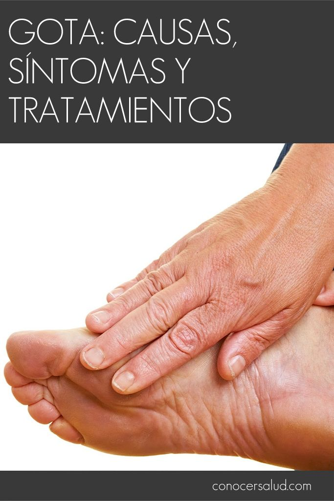 Gota: causas síntomas y tratamientos #salud