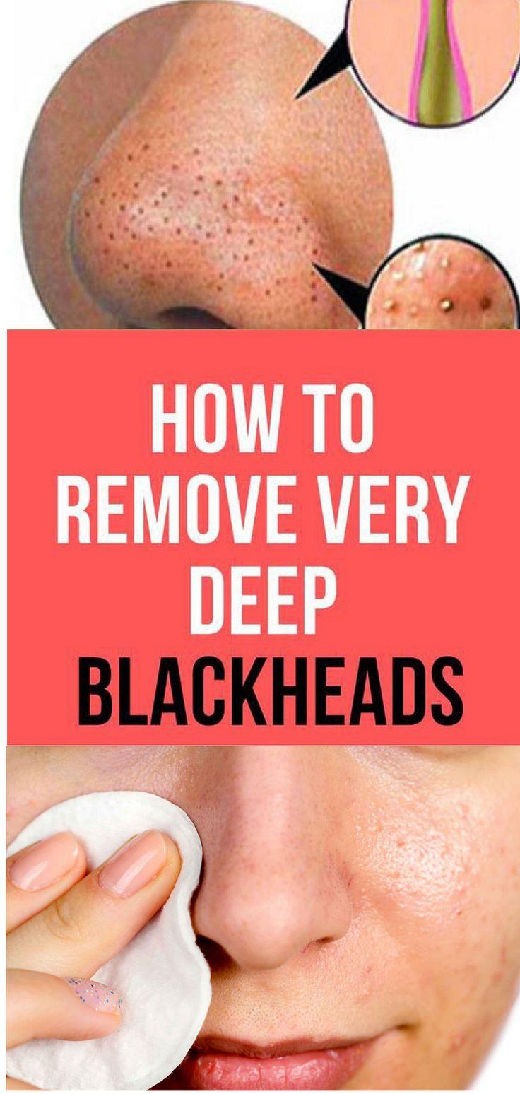 8 diy remedies to get rid of blackheads in 2020 deep
