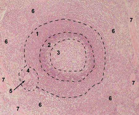 SPLEEN (follicle)       Stained with haematoxylin and eosin       lymphoid follicle is circled with        dotted line  1 - marginal zone of the follicle  2 - mantie zone of the follicle  3 - germinal center of the follicle  4 - periarterial area of the follicle  5 - central arteriole  6 - red pulp  7 - trabeculae