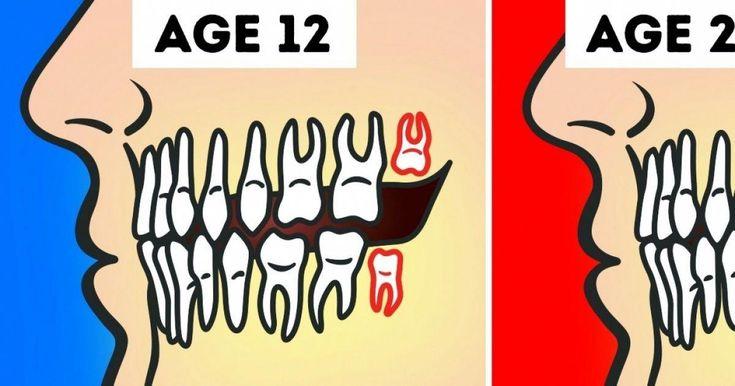 Park Art My WordPress Blog_Jaw Hurts When I Yawn Wisdom Teeth