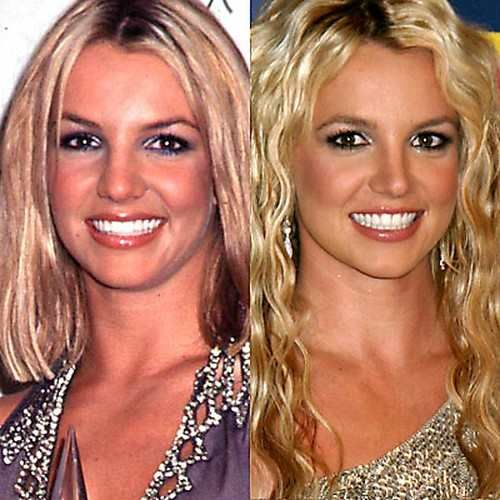 Britney Spears  before and after plastic surgery