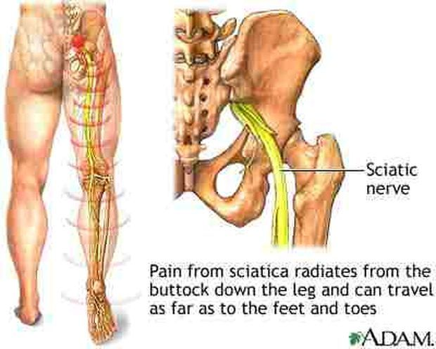 Alivio del dolor del nervio ciático