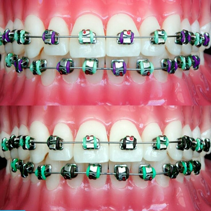 Best Colors Braces Average Cost