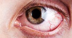 comment-proteger-vos-yeux-si-vous-passez-plus-de-4-heures-devant-un-ecran