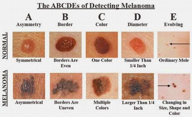 Reconocer el cáncer de piel: La Siguiente Foto Podría Salvar Su Vida