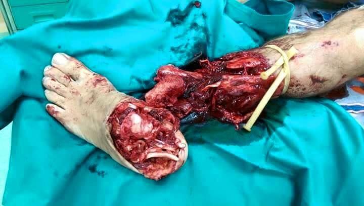 Amputazione traumatica del piede dovuto allo scoppio di un ''petardo''. Quando si festeggia col botto.