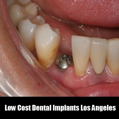 Low Cost Dental Implants Los Angeles Dr.kezian provides low cost solution for all your dental problems. #Dentalimplants #Dentist #losangelesdentist