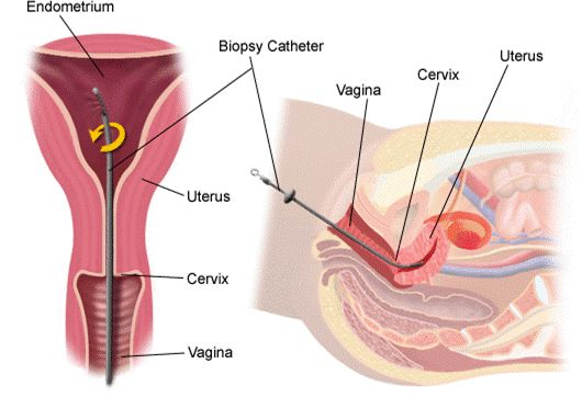 What should I expect when my doctor recommends an endometrial biopsy?  #infertility @RMANJ