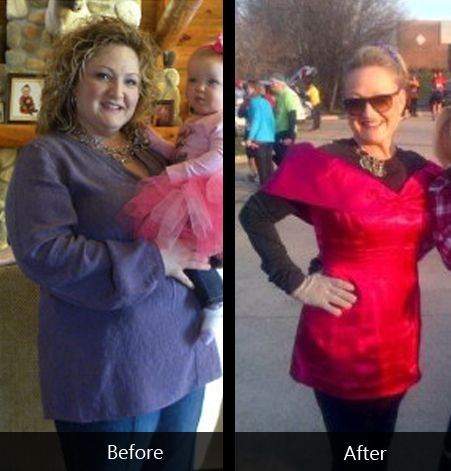 Congratulation Sheryl for losing 75 pounds on the HCG 2.0 diet.