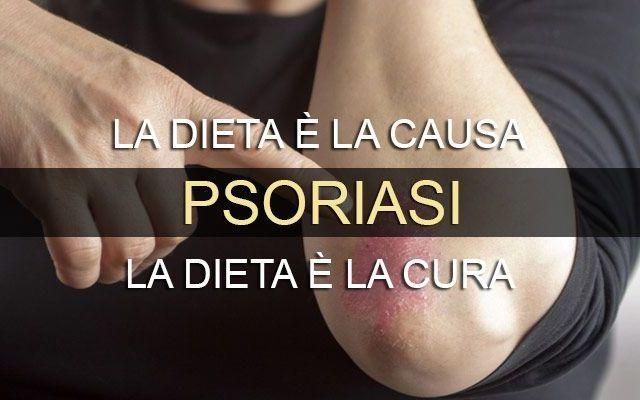 Come guarire dalla Psoriasi con la dieta Mozzi Quello che la Medicina Ufficiale ancora non ha capito ? che esiste una stretta correlazione tra p psoriasi emodieta dottor mozzi