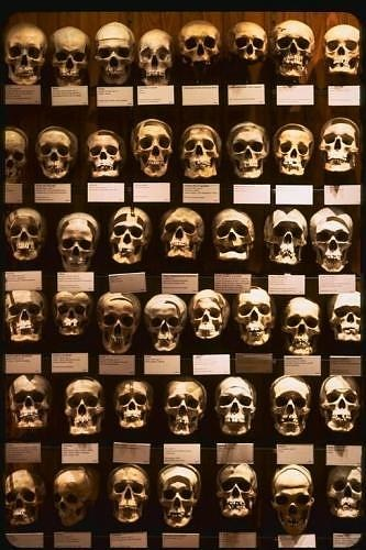 Mutter museum skulls: Skull, Mothers Museum, Philadelphia Pennsylvania, Muttermuseum, Bathroom Wall, Mother Museum, Conjoined Twin, Medical Oddities, Cool Places