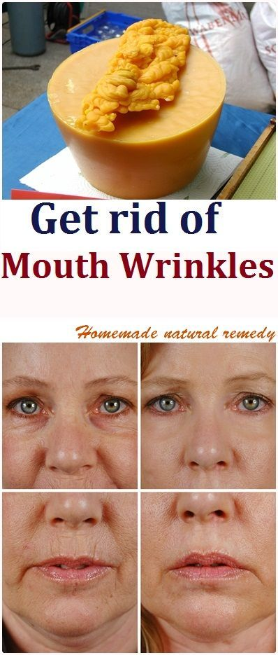 Get rid of mouth wrinkles naturally