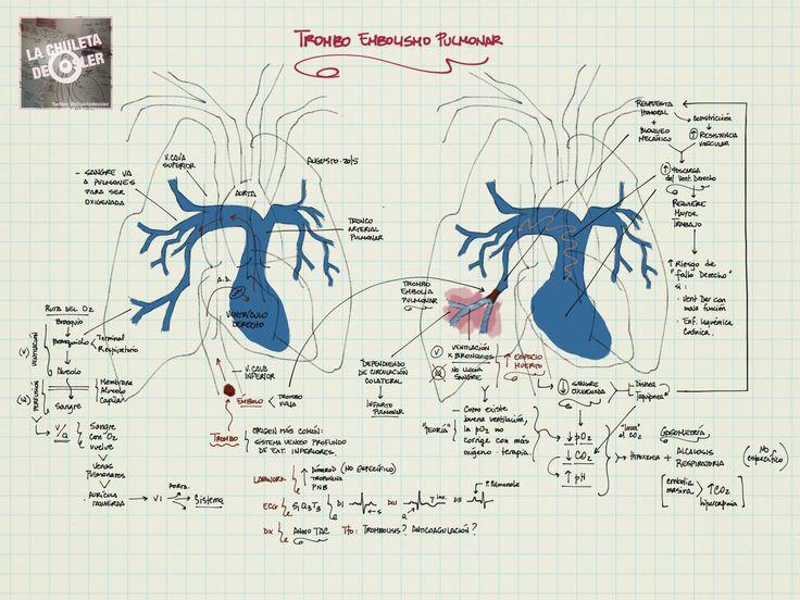La Chuleta de Osler: Neumología - Medicina Interna: Tromboembolia pulmonar (TEP)